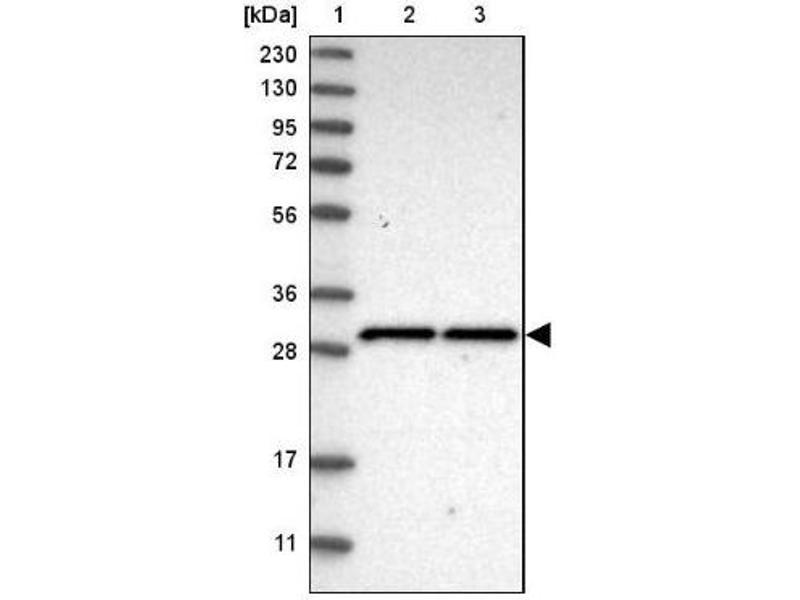 Western Blotting (WB) image for anti-SCO1 Cytochrome C Oxidase Assembly Protein (SCO1) antibody (ABIN4352258)
