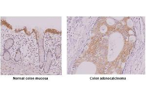 Image no. 1 for anti-Interferon Regulatory Factor 5 (IRF5) (AA 176-240) antibody (ABIN933028)