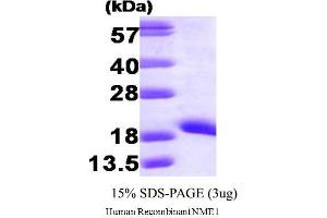 SDS-PAGE (SDS) image for Non-Metastatic Cells 1, Protein (NM23A) Expressed in (NME1) (AA 1-152) (Active) protein (ABIN1981648)