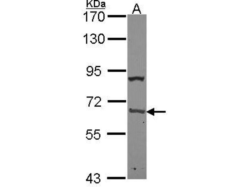 Western Blotting (WB) image for anti-Poly(A) Binding Protein, Cytoplasmic 1 (PABPC1) (AA 1-179) antibody (ABIN551388)