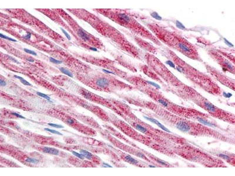 Immunohistochemistry (Paraffin-embedded Sections) (IHC (p)) image for anti-Tubulin, beta (TUBB) antibody (ABIN239815)