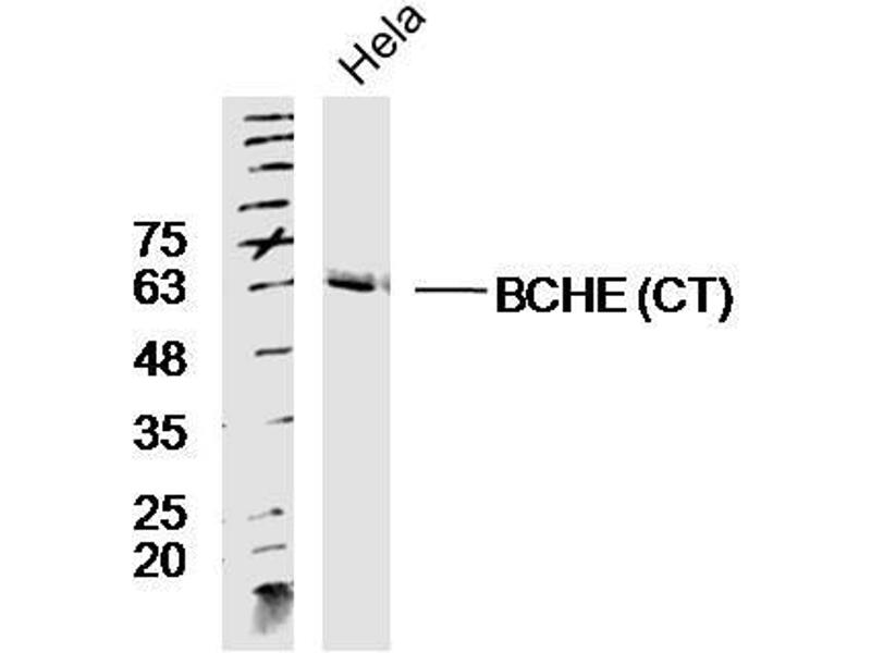 Western Blotting (WB) image for anti-Butyrylcholinesterase (BCHE) (AA 550-602), (C-Term) antibody (ABIN730603)