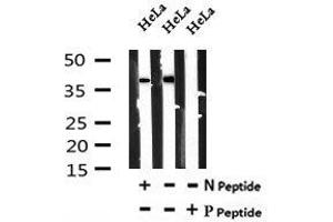 Image no. 4 for anti-Lactate Dehydrogenase A (LDHA) (pTyr10) antibody (ABIN6269761)