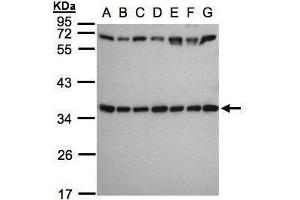 Image no. 2 for anti-Ribosomal Protein S3A (RPS3A) (Center) antibody (ABIN2856016)