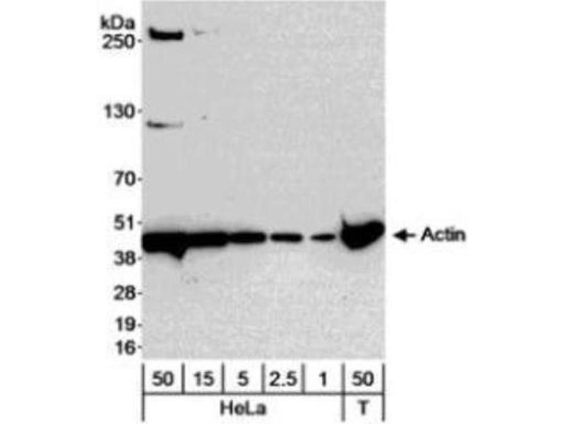 Image no. 2 for anti-Actin, gamma 1 (ACTG1) (N-Term) antibody (ABIN153419)