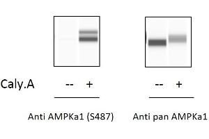 Image no. 1 for Protein Kinase, AMP-Activated, alpha 1 Catalytic Subunit (PRKAA1) ELISA Kit (ABIN5526722)