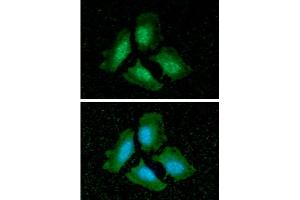 Image no. 2 for anti-Protein Phosphatase 1, Catalytic Subunit, alpha Isoform (PPP1CA) antibody (ABIN306433)