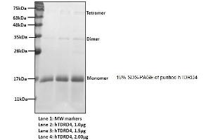 Image no. 2 for Ring Finger Protein 17 (RNF17) (AA 30-139) protein (His tag) (ABIN1888848)