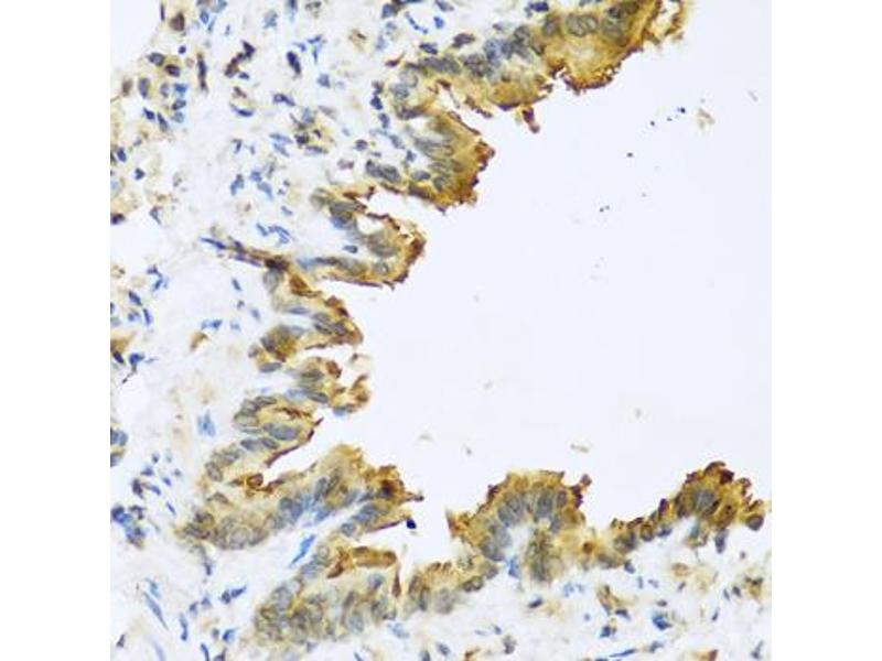 Image no. 2 for anti-Defensin, beta 4A (DEFB4) antibody (ABIN6568822)