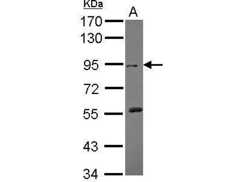 Western Blotting (WB) image for anti-DDR2 antibody (Discoidin Domain Receptor tyrosine Kinase 2) (Center) (ABIN2855418)