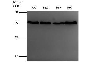 Image no. 1 for anti-Voltage-Dependent Anion Channel 1 (VDAC1) (Center) antibody (ABIN2856954)