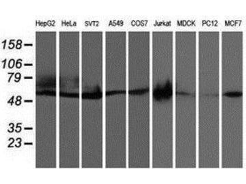 Western Blotting (WB) image for anti-Cerebral Cavernous Malformation 2 (CCM2) antibody (ABIN4288903)