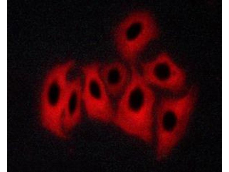 Immunofluorescence (fixed cells) (IF/ICC) image for anti-Calcium/calmodulin-Dependent Protein Kinase (CaM Kinase) II beta (CAMK2B) (pThr286) antibody (ABIN6256533)