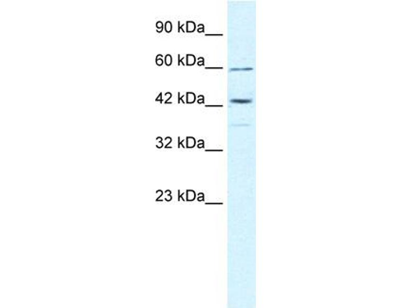 Western Blotting (WB) image for anti-Tripartite Motif Containing 68 (TRIM68) (Middle Region) antibody (ABIN2775806)
