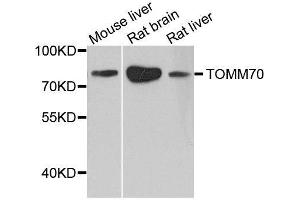 Image no. 2 for anti-Translocase of Outer Mitochondrial Membrane 70 (TOMM70A) antibody (ABIN1683089)