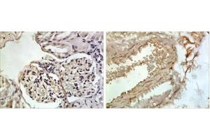 Immunohistochemistry (Paraffin-embedded Sections) (IHC (p)) image for anti-CXCL13 / BLC / BCA-1 Antikörper (ABIN4265368)