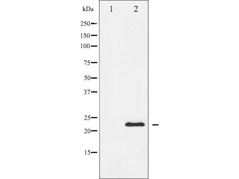 Image no. 2 for anti-Metalloproteinase Inhibitor 2 (TIMP2) antibody (ABIN6269428)