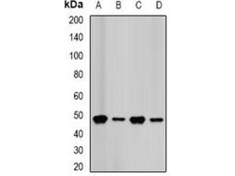 Western Blotting (WB) image for anti-Farnesyl Diphosphate Synthase (FDPS) antibody (ABIN2966631)