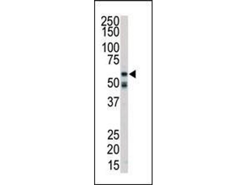 Western Blotting (WB) image for anti-Receptor-Interacting Serine-threonine Kinase 2 (RIPK2) (AA 458-488), (C-Term) antibody (ABIN392274)
