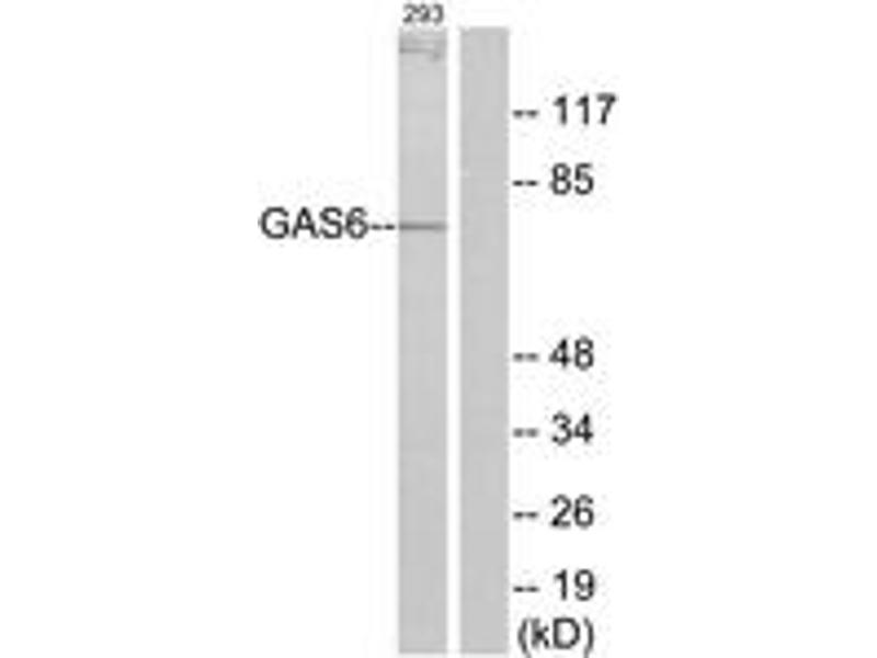 Western Blotting (WB) image for anti-GAS6 antibody (Growth Arrest-Specific 6) (ABIN1533886)