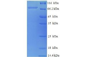 Image no. 1 for Protein Disulfide Isomerase Family A, Member 2 (PDIA2) (AA 21-527) protein (His-SUMO Tag) (ABIN5710081)