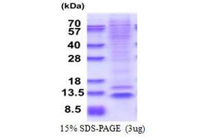 Image no. 1 for Nucleoporin 62kDa C-terminal Like (NUP62CL) (AA 1-72) protein (His tag) (ABIN5853609)