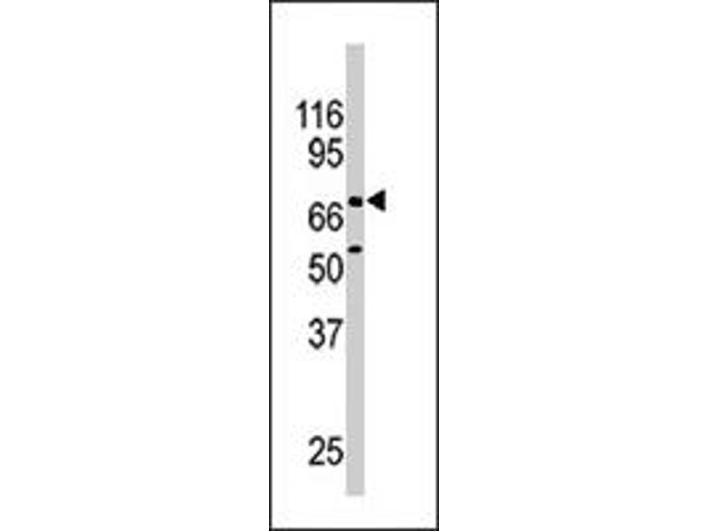 Western Blotting (WB) image for anti-Nuclear Receptor Subfamily 4, Group A, Member 2 (NR4A2) antibody (ABIN545420)