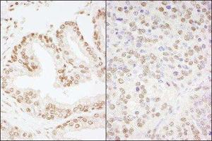 Immunohistochemistry (Paraffin-embedded Sections) (IHC (p)) image for anti-cAMP Responsive Element Binding Protein 1 (CREB1) (AA 250-300) antibody (ABIN257735)
