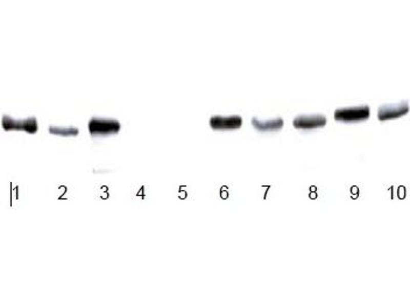 Western Blotting (WB) image for anti-Glyceraldehyde-3-Phosphate Dehydrogenase (GAPDH) antibody (ABIN284439)