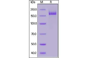 Image no. 2 for SARS-CoV-2 Spike (Trimer) (Active) protein (His tag) (ABIN6952523)