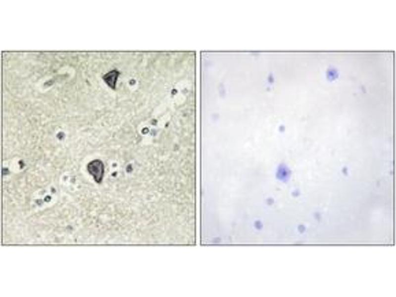 Immunohistochemistry (IHC) image for anti-Fibroblast Growth Factor Receptor 3 (FGFR3) (AA 131-180) antibody (ABIN1533273)