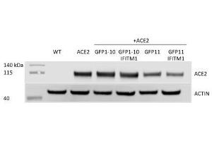 Image no. 1 for anti-Angiotensin I Converting Enzyme 2 (ACE2) antibody (ABIN1169449)