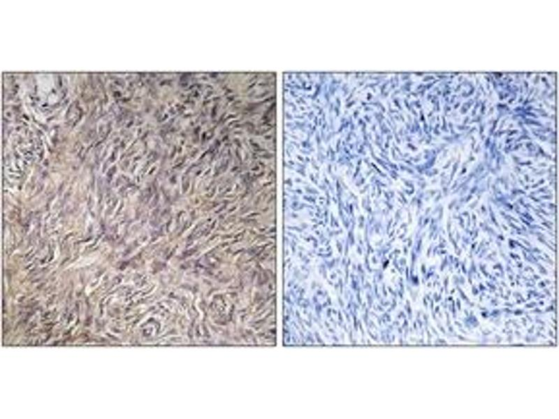 Immunohistochemistry (IHC) image for anti-Fibroblast Growth Factor 22 (FGF22) (AA 71-120) antibody (ABIN1534407)