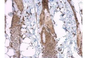 Immunohistochemistry (IHC) image for anti-Lamin A/C (LMNA) (Center) antibody (ABIN2854942)