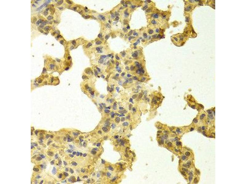 Immunohistochemistry (IHC) image for anti-TNFRSF1A-Associated Via Death Domain (TRADD) antibody (ABIN3021542)
