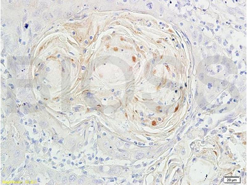 Immunohistochemistry (IHC) image for anti-Forkhead Box O3 (FOXO3) (AA 290-340), (pSer318), (pSer321) antibody (ABIN684688)