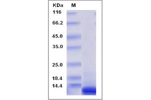 Image no. 1 for Chemokine (C-X-C Motif) Ligand 10 (CXCL10) (AA 22-98), (Mature) protein (ABIN2003369)