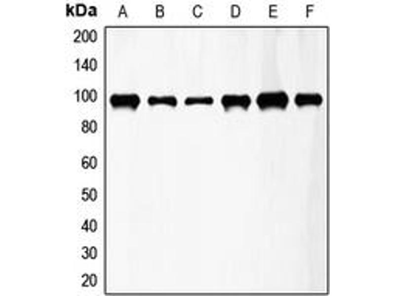 Western Blotting (WB) image for anti-Fibroblast Growth Factor Receptor 3 (FGFR3) (Center) antibody (ABIN2706149)
