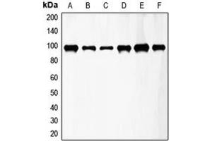 Western Blotting (WB) image for anti-FGFR3 antibody (Fibroblast Growth Factor Receptor 3) (Center) (ABIN2706149)