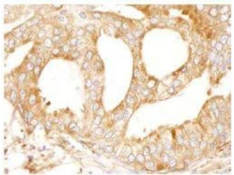Immunohistochemistry (Paraffin-embedded Sections) (IHC (p)) image for anti-Microtubule-Associated Protein 4 (MAP4) (AA 1102-1152) antibody (ABIN261693)