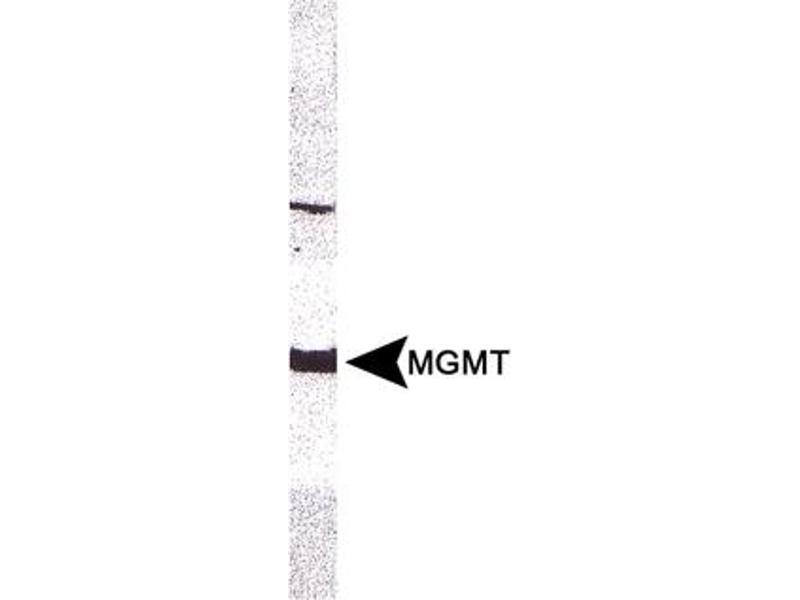 Western Blotting (WB) image for anti-O6-Methylguanine-DNA-Methyltransferase (MGMT) antibody (ABIN151202)