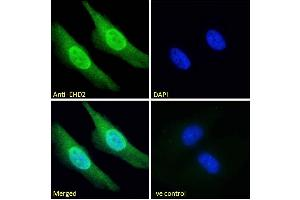 Image no. 5 for anti-EH-Domain Containing 2 (EHD2) (C-Term) antibody (ABIN185287)