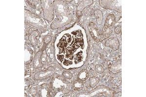 Immunohistochemistry (Paraffin-embedded Sections) (IHC (p)) image for anti-RBM20 抗体 (RNA Binding Motif Protein 20) (ABIN4349591)