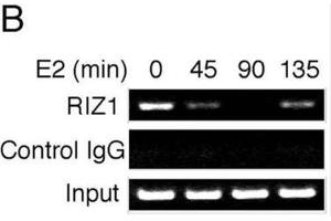 Image no. 1 for anti-PR Domain Containing 2, with ZNF Domain (PRDM2) antibody (ABIN2995299)
