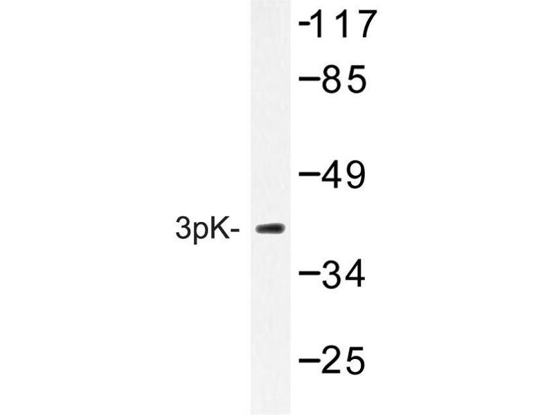 image for anti-MAPKAP Kinase 3 antibody (Mitogen-Activated Protein Kinase-Activated Protein Kinase 3) (ABIN272238)