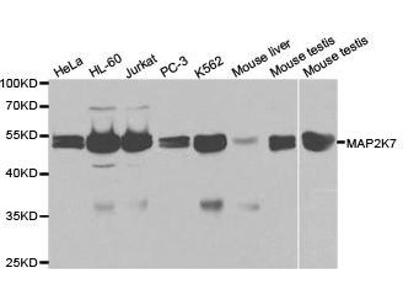 Western Blotting (WB) image for anti-MAP2K7 antibody (Mitogen-Activated Protein Kinase Kinase 7) (ABIN1873610)