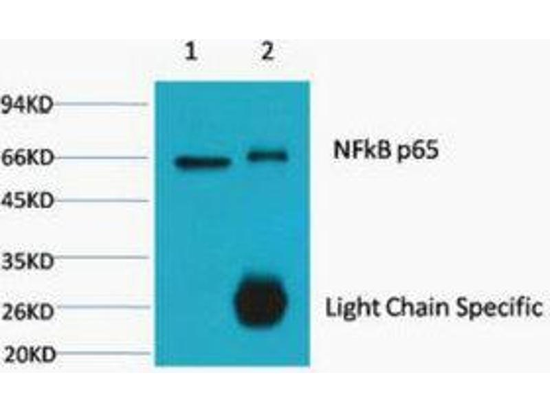 Immunoprecipitation (IP) image for anti-p65 Antikörper (Nuclear Factor-KB P65) (ABIN3181181)