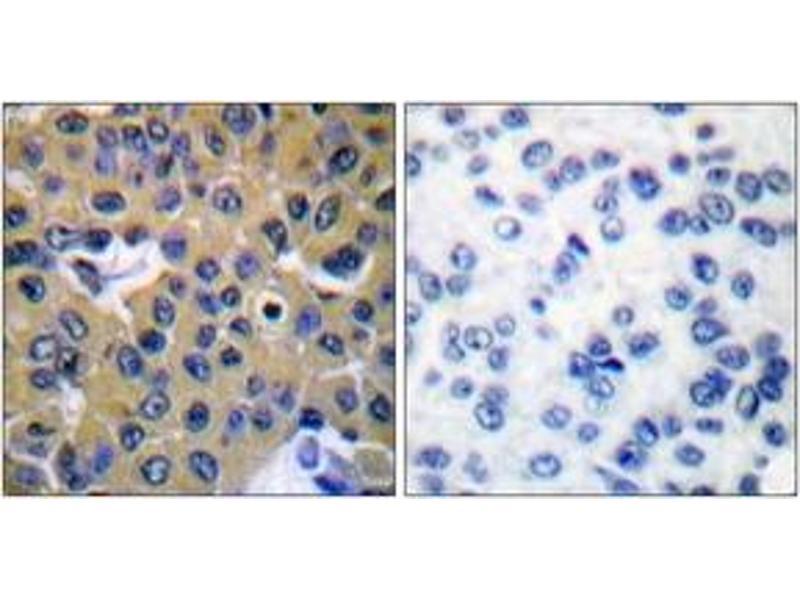 Immunohistochemistry (IHC) image for anti-PTPN11 Antikörper (Protein tyrosine Phosphatase, Non-Receptor Type 11) (pTyr542) (ABIN1531196)