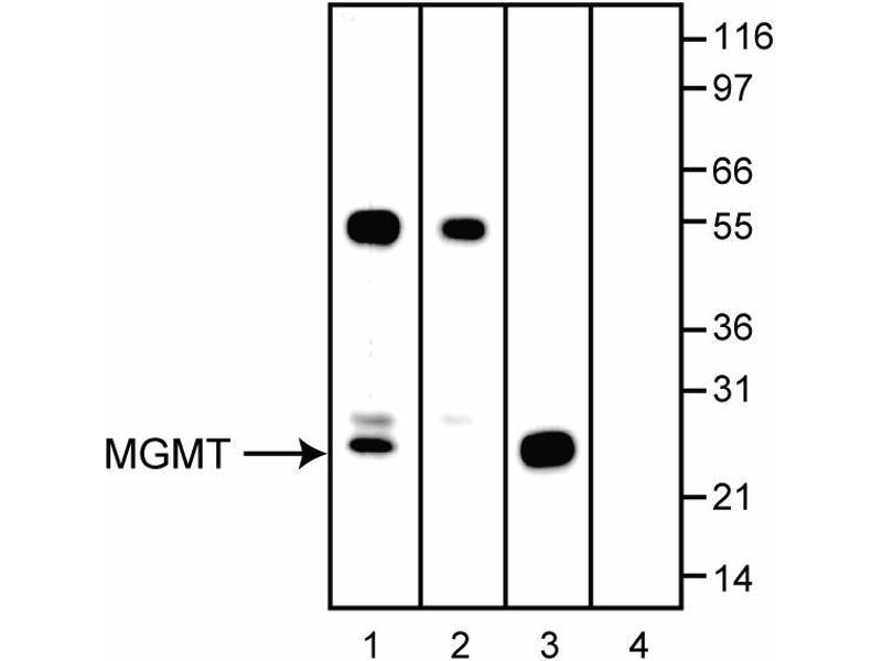 Image no. 3 for anti-O6-Methylguanine-DNA-Methyltransferase (MGMT) antibody (ABIN967567)