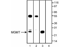 anti-O6-Methylguanine-DNA-Methyltransferase (MGMT) antibody (3)